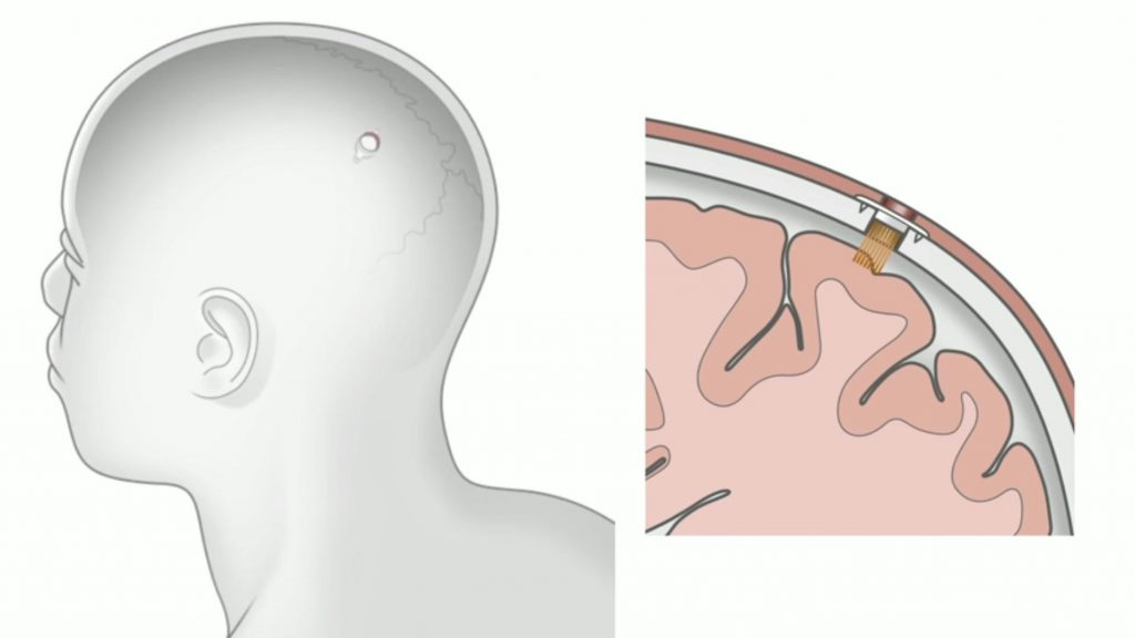 an illustration showing where neuralink will be placed on a human brain